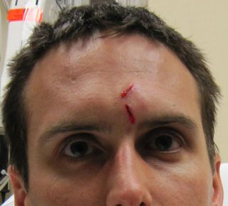 Aathens_forehead